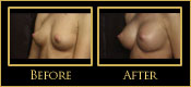 Breast Augmentation Before and After Photos